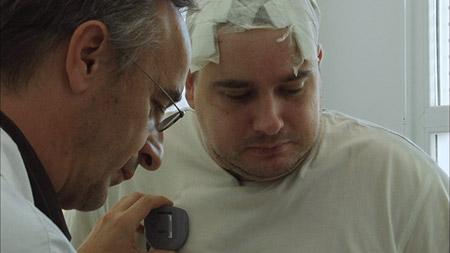 Stimulation Cérébrale